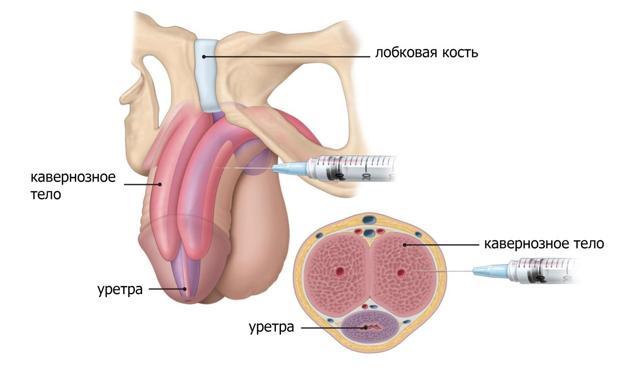 Уколы папаверина: инструкция по применению, как делать инъекции