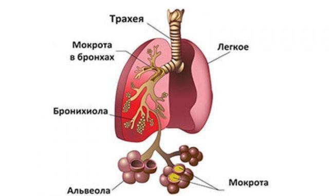 Пневмония на фоне сердечной недостаточности -