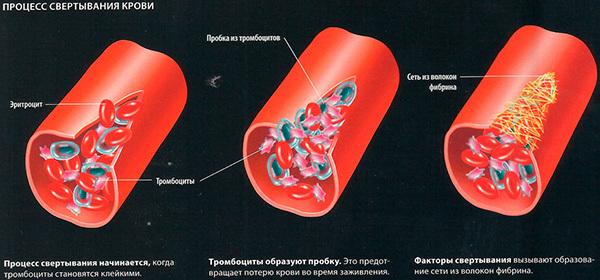 Анализ на свертываемость крови