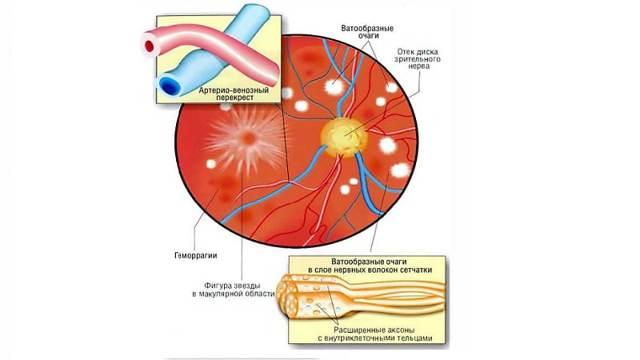 Ангиопатия сетчатки по гипертоническому типу: лечение, симптомы