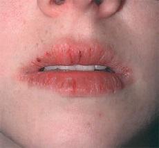 Хейлит на губах - фото, лечение, симптомы и причины