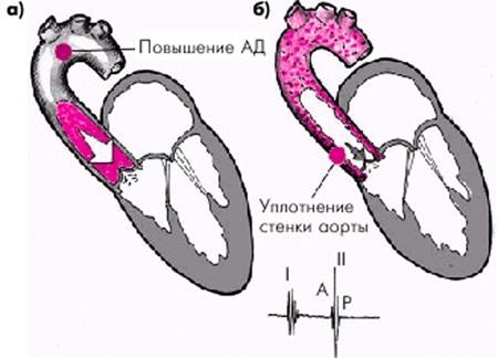 II. Гипертензия при поражении аорты и ее ветвей (поражение ...
