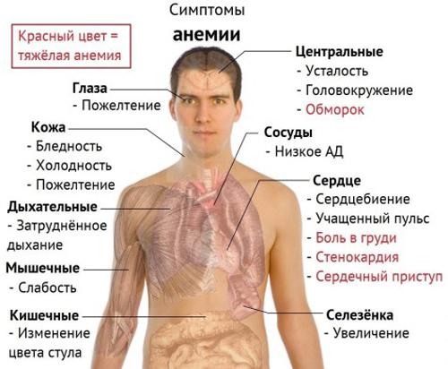 Анемия – что это такое? Симптомы и лечение