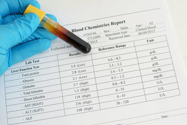 Повышенный билирубин в крови у взрослого: причины, что делать
