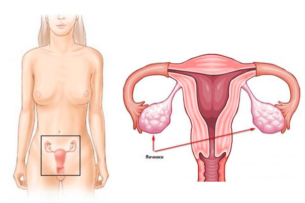 Рак яичников у женщин: симптомы и первые признаки, диагностика и лечение