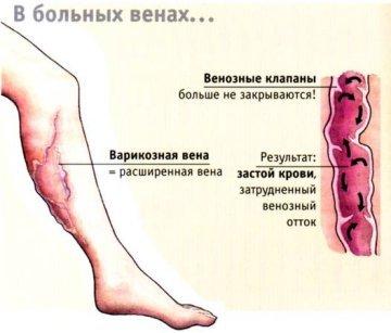 Вены на ногах вылезли что делать - Сайт о варикозе