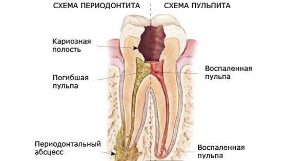 Хронический Пульпит • OHI-S