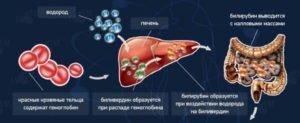 Высокий билирубин в крови у взрослых: причины и признаки, норма билирубина. Способы снизить количество вещества в крови