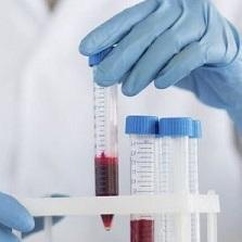 СРБ в крови - что это такое: расшифровка показателей