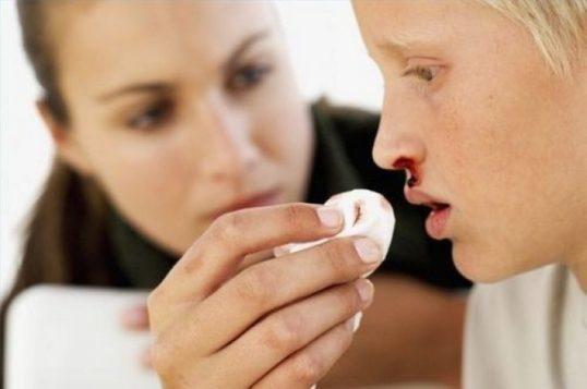 Кровь из носа: возможные причины, первая помощь и лечение