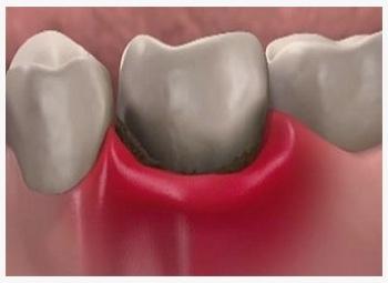 Поставили пломбу а зуб болит что делать - 32Дента