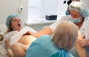 Причины появления варикоза у женщин в паху