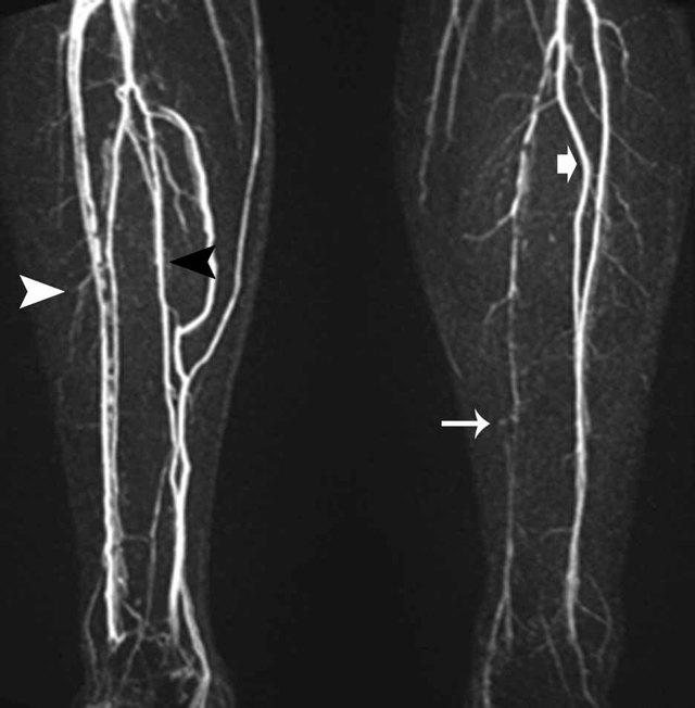 Атеросклероз сосудов нижних конечностей - симптомы и лечение - Всё о склерозе