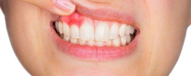 Периостит зуба: виды, причины, симптомы и лечение