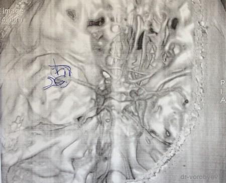 Виды аневризм сосудов головного мозга: классификация по размеру, форме, локализации (ПСА, ПМА, базилярной артерии и других)