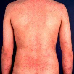Чем лечить аллергический дерматит у взрослых и детей? Симптомы и фото