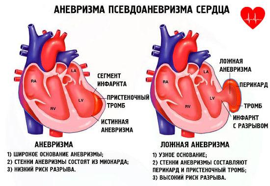 Аневризма сердца - Боль в Сердце