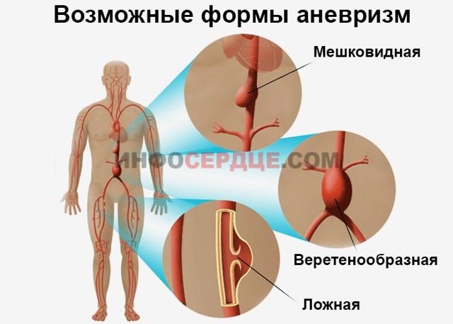 Аорта уплотнена - что это значит? Лечение уплотнения аорты