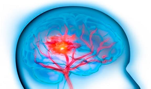 Инсульт: симптомы и первые признаки у женщин и мужчин, первая помощь и лечение