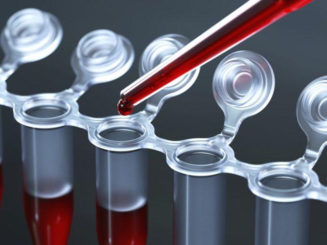 Анализ крови на АСТ – показания, норма и расшифровка