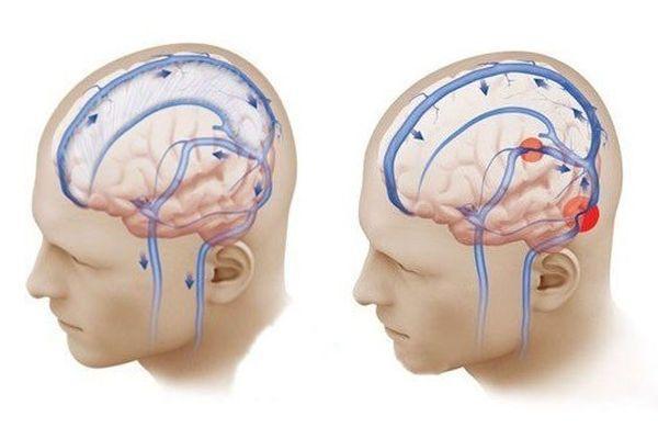 Ангиоспазм сосудов головного мозга