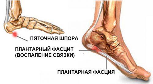 Почему болят пятки. Причины и лечение. Больно наступать - при ходьбе, после ходьбы, утром после сна