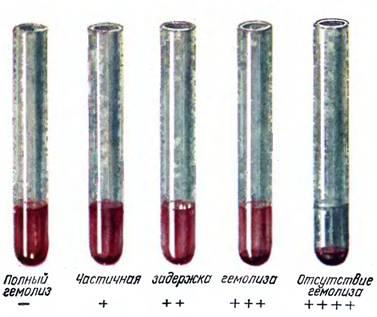 Гемолиз крови при сдаче анализов — что это?