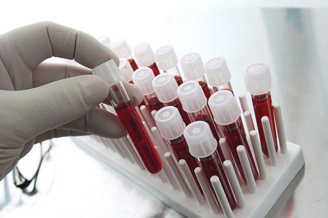 Эозинофилы в анализе крови: норма содержания, что это такое, причины почему понижены
