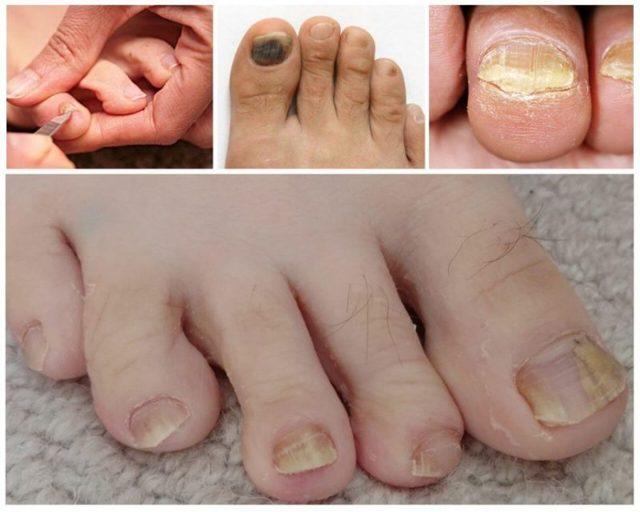Грибок на ногах: фото, симптомы и лечение