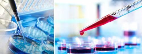 Бактериологический посев крови. Микробиологическое исследование. Гемокультура. Посев (Культура) крови. Стерильность крови. Диагностика. Анализы. Бектериемия и Фунгемия. Интерпретация результатов