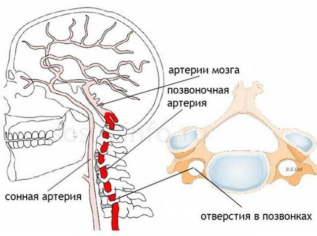 Асимметрия v4 сегментов позвоночных артерий d s. Можно ли вылечить синдром позвоночной артерии при остеохондрозе