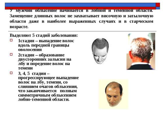Выпадение волос у мужчин в молодом возрасте - причины, симптомы, лечение