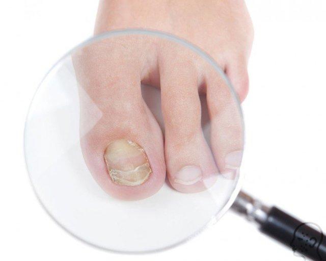 Формидрон от грибка ногтей: отзывы, цена, инструкция