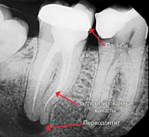 Почему болит зуб после пломбирования каналов - обзор причин
