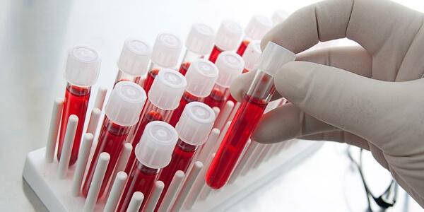 Анти-HCV положительный: что это значит, расшифровка
