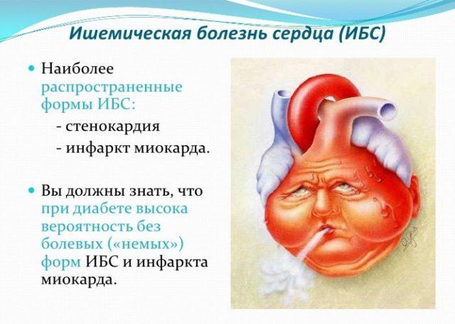 Ишемическая болезнь сердца - причины, симптомы, лечение
