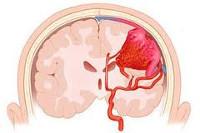 Ангиома - причины, симптомы, диагностика и лечение