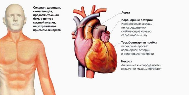 Инфаркт миокарда симптомы и последствия