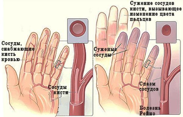 Онемение пальцев на левой и правой руке: причины, лечение