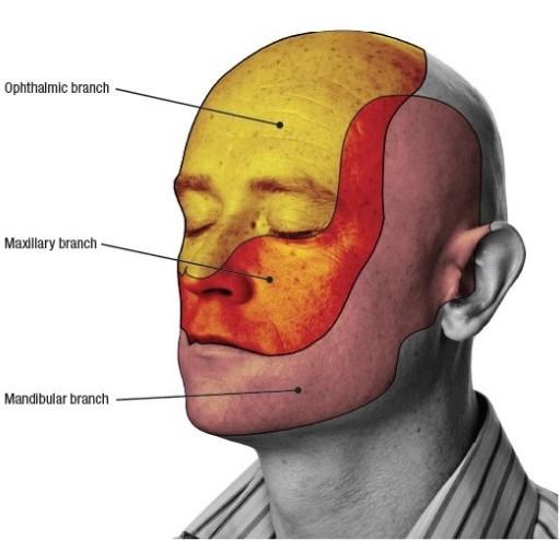 Острый пульпит — симптомы, диагностика и лечение заболевания