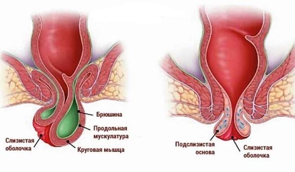 Что такое геморроидэктомия, послеоперационный период