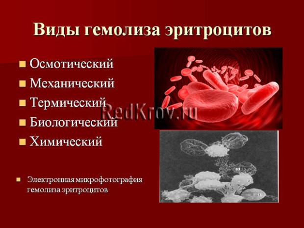 Гемолиз - это что? Гемолиз крови, частичный гемолиз