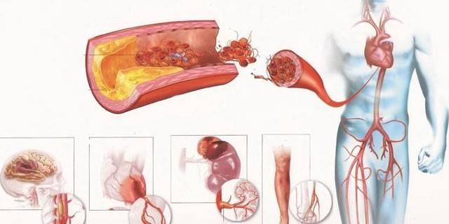 Атеросклероз - что это такое? Симптомы, причины, диагностика и лечение.