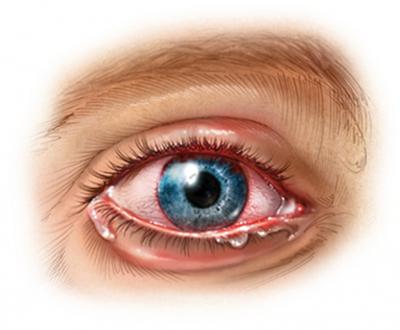 Гидрокортизоновая глазная мазь: инструкция по применению