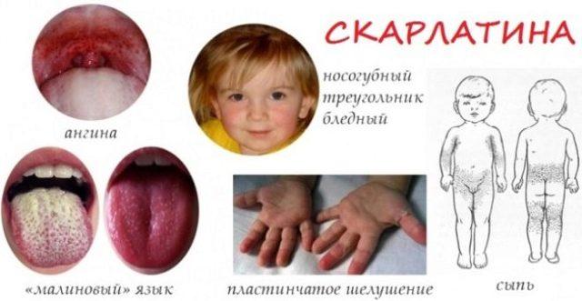 Скарлатина у детей - фото, симптомы и лечение, профилактика