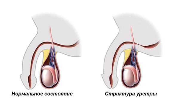 Боль, жжение и рези при мочеиспускании у женщин и мужчин: причины и лечение