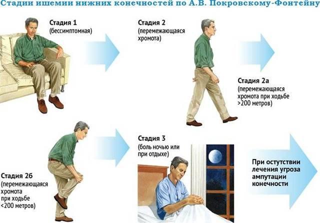 Облитерирующий атеросклероз сосудов нижних конечностей – симптомы и лечение