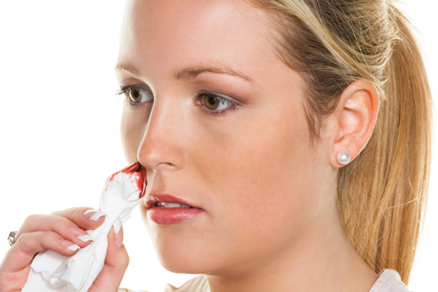 Почему идет кровь из носа - причины кровотечения у взрослого человека 2019