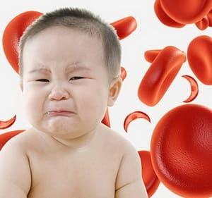 Анемии детей раннего возраста
