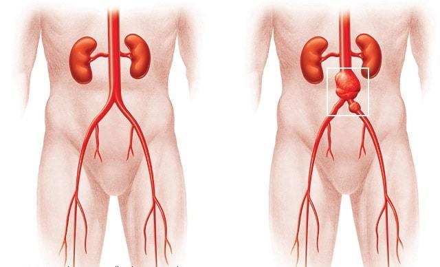Аневризма брюшной аорты - операция и эндопротезирование